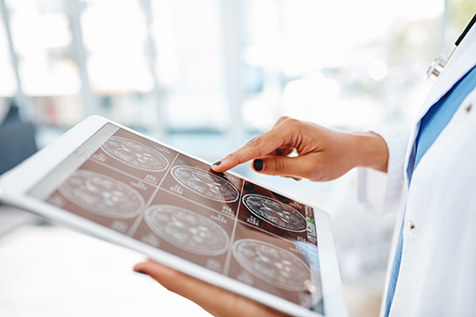 a neurologist looking at MRI cross-sections